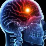 Εγκεφαλικό: Τι να κάνετε για να μειώσετε κατά 37% τον κίνδυνο