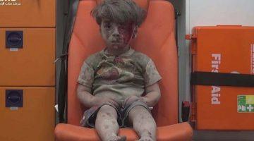 Πέθανε ο 10χρονος αδελφός του Ομράν – Του παιδιού που η φωτογραφία του συγκλόνισε τον κόσμο
